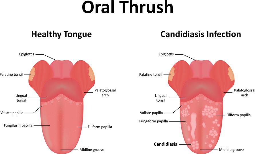Thrush lozenge