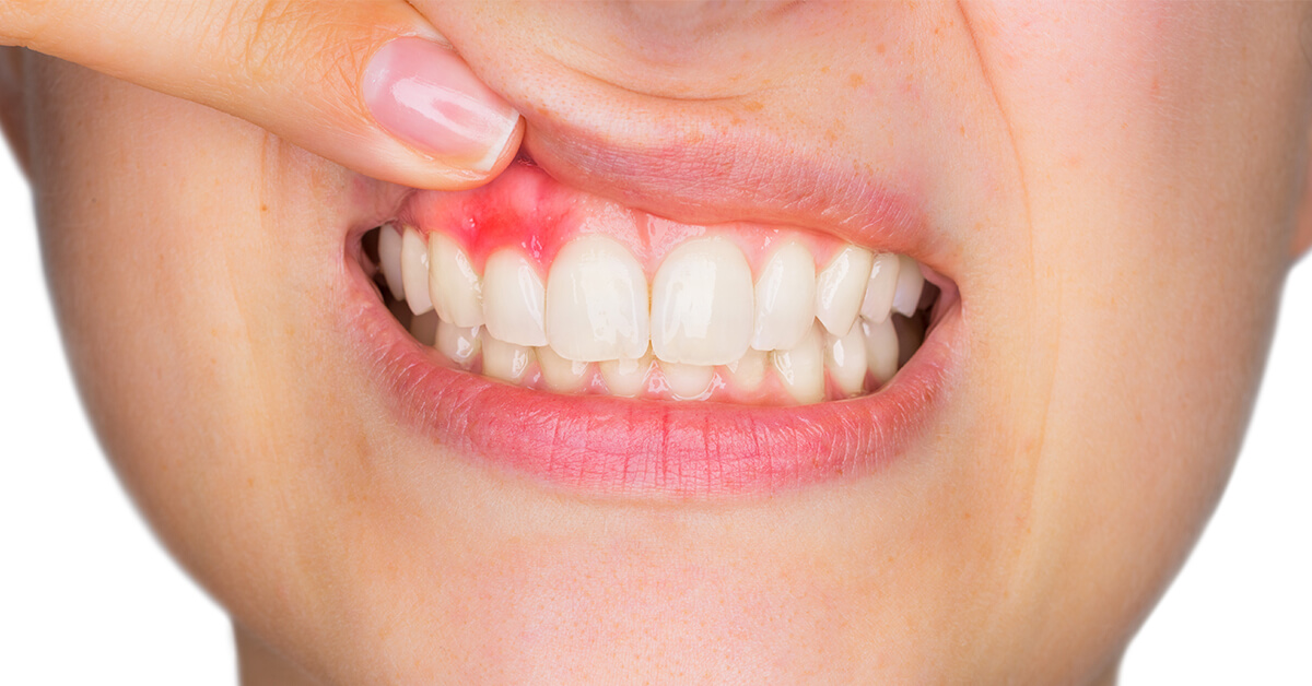Do you suffer from bleeding gums? It may lead to gum disease. Did you know oral probiotics may heal gum disease?