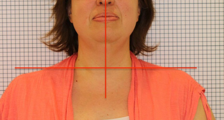 Before the tongue-tie surgery. Notice the right shoulder, lower than the left and asymmetrical muscle tension in the face and neck.