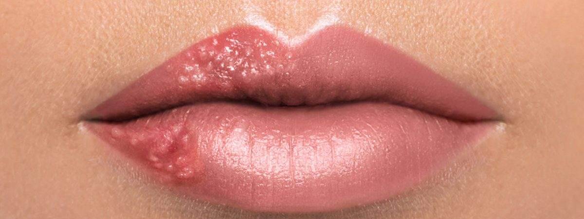 Canker Sores vs. Cold Sores: Causes and Natural Cures