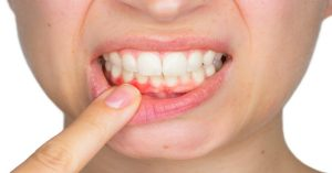 Can Vitamin K2 Prevent and Cure Gum Disease?